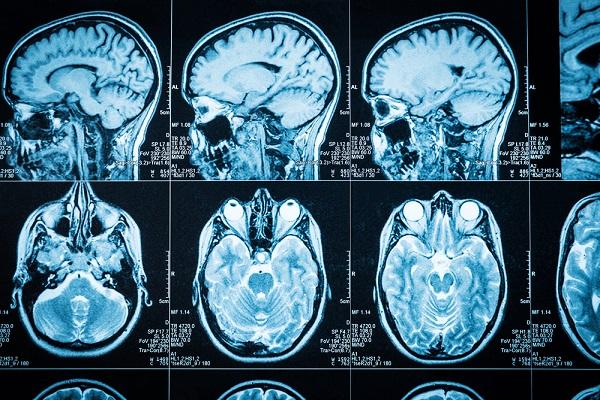 1-11Deepsense-Radiology-2 Machine Studying Advancing Medical Imaging and Evaluation
